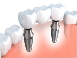 Felpham Dental Implants